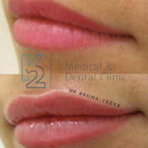 usta dr brona-teżyk 1